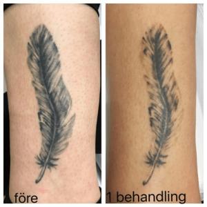 laser tatuering pris
